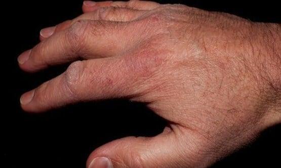 ما سبب تقشر الجلد وكيفية العلاج نهائيًا بالأعشاب