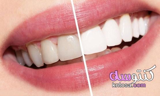 طريقة تبييض الاسنان في اسبوع بالوصفات الطبيعية